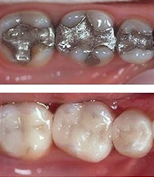 CEREC inlay